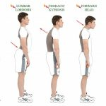 Enhancing Good Posture With The Aid Of Posture Corrector